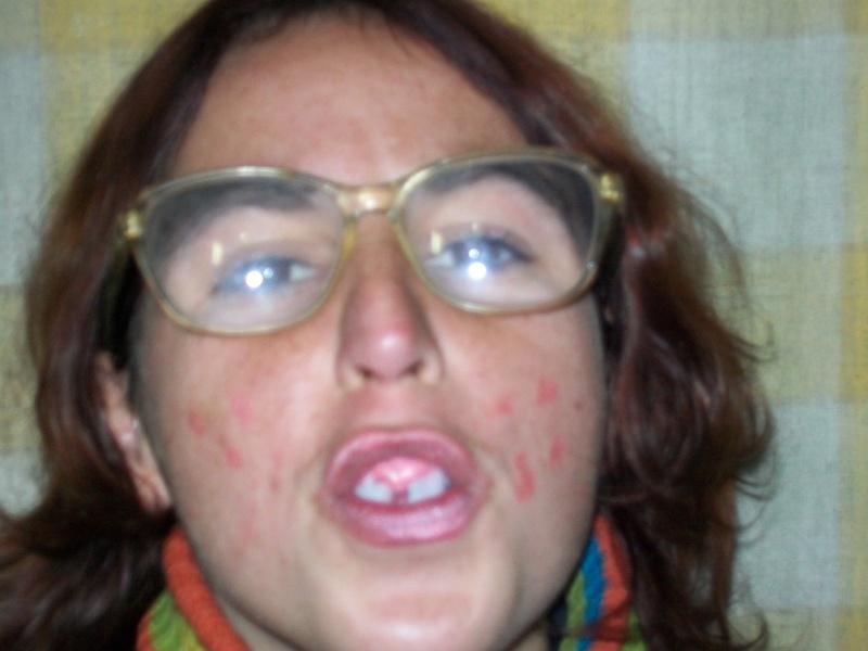 La fea con gafas se apunta a la fiesta 9